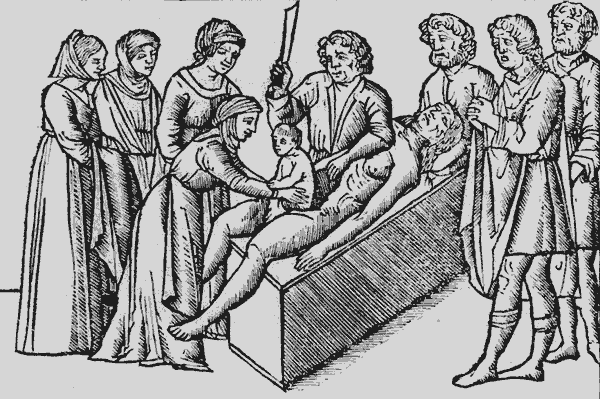 medieval-medical-ceasarian-section